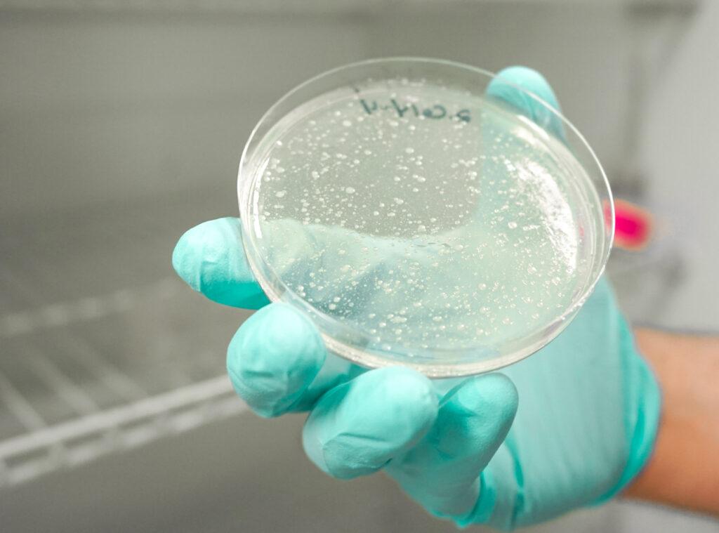 Cyclospora in a laboratory testing