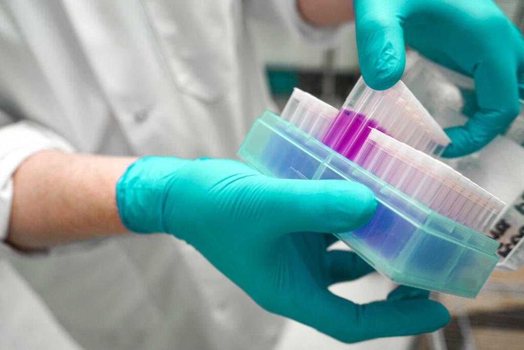 Cyclospora in testing laboratory